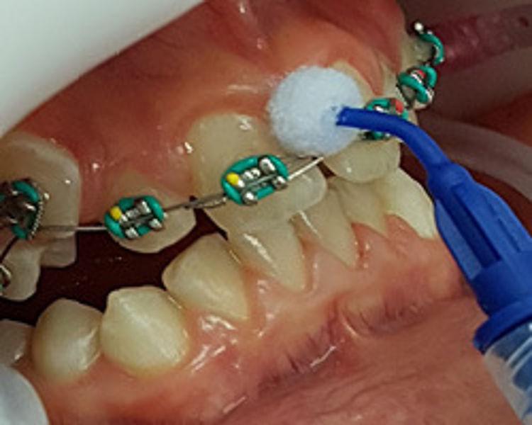 weiße flecken auf den zähnen